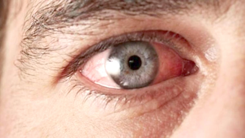 """""""Göz Rahatsızlıkları Başka Bir Hastalığın Belirtisi Olabilir"""""""